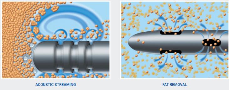 كيف يعمل جهاز الفيزر لشفط الدهون الموضعية