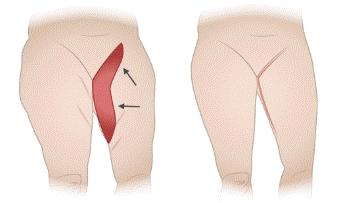 عملية شد ترهلات الفخذين جراحيًا