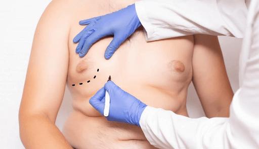 افضل دكتور لعلاج التثدي عند الرجال